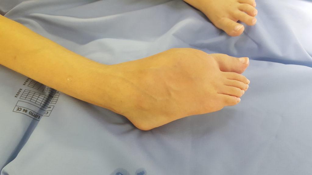La malformazione del piede di Marta