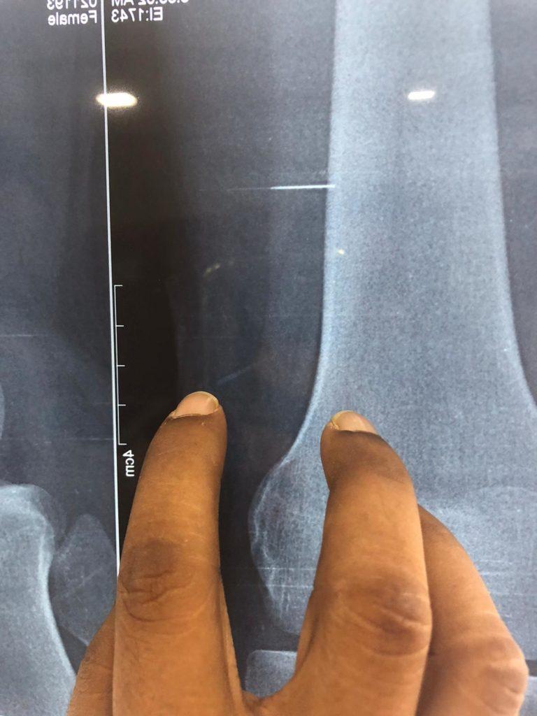 Chirurgia: alla ricerca dell'ago nel pagliaio