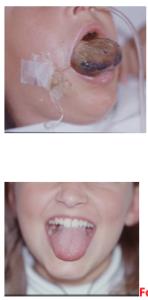Linfangioma alla lingua