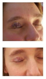Trattamento Laser transdermico di malf. venosa della palpebra